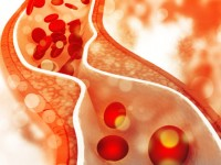 Τσικνοπέμπτη: Πώς θα ρίξετε την χοληστερίνη μετά την κρεοφαγία