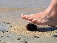 Τι πρέπει να κάνετε εάν πατήσετε δράκαινα ή αχινό στη θάλασσα;