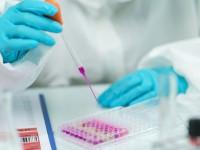Η Covid-19 είναι τουλάχιστον πέντε φορές πιο φονική από τη γρίπη