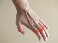 Αρθρίτιδα: Τι να φάτε όταν προσέξετε αυτά τα συμπτώματα