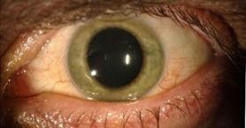 Ασθενής που «θεραπεύτηκε» από Έμπολα είδε το μάτι του να αλλάζει χρώμα