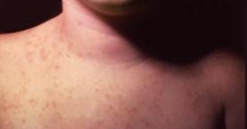 Νέο κρούσμα μηνιγγίτιδας Β -Στην Εντατική 4χρονο αγοράκι από το Χαϊδάρι