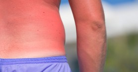 Έγκαυμα: Τι να κάνετε αν καείτε από τον ήλιο