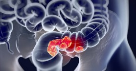 Άτομα κάτω των 30 ετών χτυπά ο καρκίνος του εντέρου