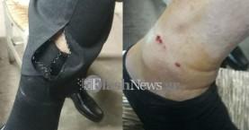 Σκυλιά δάγκωσαν ηλικιωμένο στο…. Νοσοκομείο Χανίων! (φωτο)