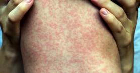 Εξαπλώνεται η ιλαρά στη Νέα Ζηλανδία, πάνω από χίλια τα επιβεβαιωμένα κρούσματα