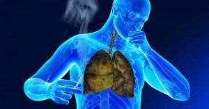 Ο σύλλογος πνευμονολόγων ιατρών Χανίων για την παγκόσμια ημέρα Χ.Α.Π.
