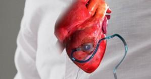 Η 1η συσκευή που εμφυτεύεται στην καρδιά και την προστατεύει από έμφραγμα