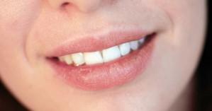 Ηλιακό έγκαυμα στα χείλια: Τρεις επιλογές θεραπείας