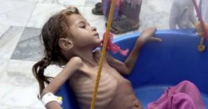 Υεμένη: Περίπου 85.000 παιδιά κάτω των πέντε ετών έχουν πεθάνει από πείνα