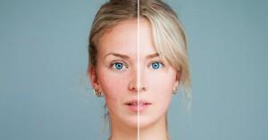 Αϋπνία: Πώς επηρεάζει την εμφάνιση και την επιδερμίδα