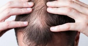 Φαλάκρα: Ποιες είναι οι αιτίες απώλειας των μαλλιών