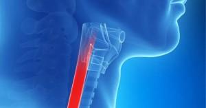 Ηλεκτρονική «μύτη»  ανιχνεύει μέσω αναπνοής τον πρόδρομο του καρκίνου του οισοφάγου