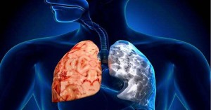 31η Μαΐου - Παγκόσμια Ημέρα κατά του καπνίσματος