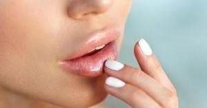 Με αυτά τα tips θα απαλλαγείτε από τα σκασμένα χείλη
