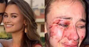 Κορυφαίο μοντέλο Ουκρανή υποστηρίζει ότι έπεσε θύμα ξυλοδαρμού σε beach bar της Τουρκίας