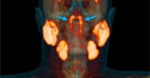 Νέο όργανο ανακαλύφθηκε στον ανθρώπινο λαιμό από ερευνητές