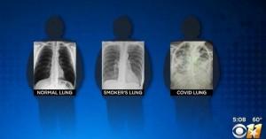 Έτσι είναι οι πνεύμονες ενός ασθενούς με κορονοϊό, ενός καπνιστή και ενός υγιούς ανθρώπου