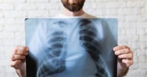 Καρκίνος του πνεύμονα: Αυτά είναι τα συμπτώματα – Μπορεί να φανεί ακόμα και στα μάτια