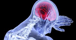 Τα πρώτα σημάδια ενός εγκεφαλικού επεισοδίου που ακόμα και οι νέοι πρέπει να ξέρουν