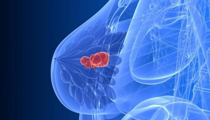 Μια διατροφική συνήθεια προστατεύει απ'την επανεμφάνιση του καρκίνου μαστού