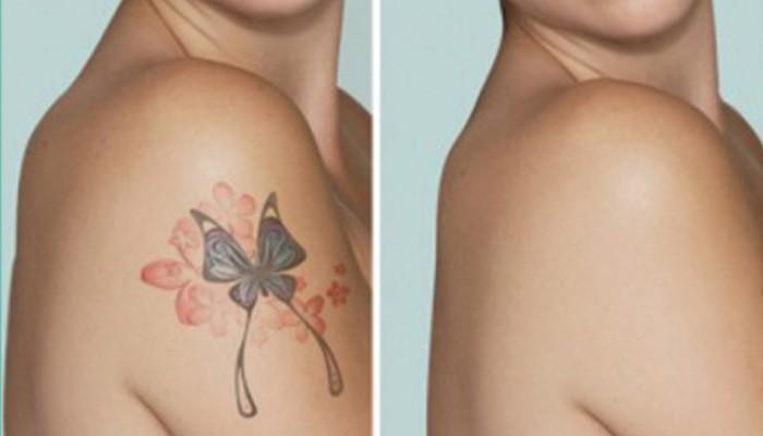 Θέλεις να απαλλαγείς από ένα ανεπιθύμητο τατουάζ;