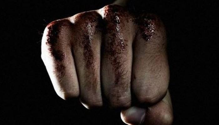 Άγριος ξυλοδαρμός άνδρα στην Σπλάντζια - Του έριχναν κλωτσιές στο κεφάλι