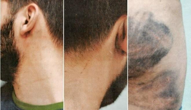 Αθωώθηκαν αστυνομικοί που κατηγορούνταν για ξυλοδαρμό 27χρονου