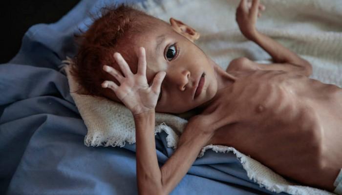 Το δράμα 5 εκατομμυρίων παιδιών στην Υεμένη που απειλούνται από λιμό