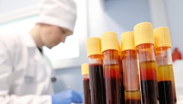 Στη Ρωσία θα βάζουν πρόστιμο σε όσους υποστηρίζουν ότι ο ιός HIV είναι κατασκεύασμα