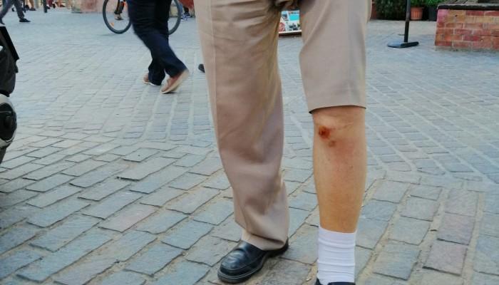 Συχνοί οι τραυματισμοί στα κολωνάκια της Χάληδων (φωτο)