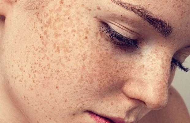 Πώς θα εξαφανίσετε τις πανάδες στο πρόσωπο με φυσικές θεραπείες