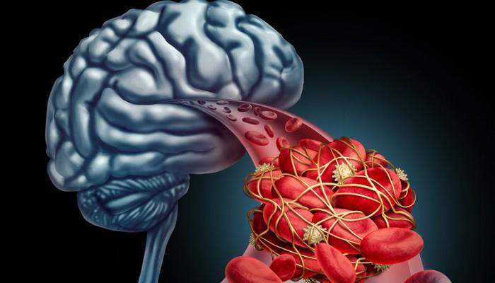Εγκεφαλικό ανεύρυσμα: Ο ρόλος της ασπιρίνης στην εξέλιξή του