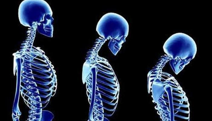 20 Οκτωβρίου Παγκόσμια Ημέρα Οστεοπόρωσης: Σήμερα υπάρχει λύση
