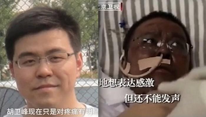 Κορωνοϊός - Κίνα: Ο γιατρός της Ουχάν που μαύρισε το δέρμα του λόγω της θεραπείας πέθανε