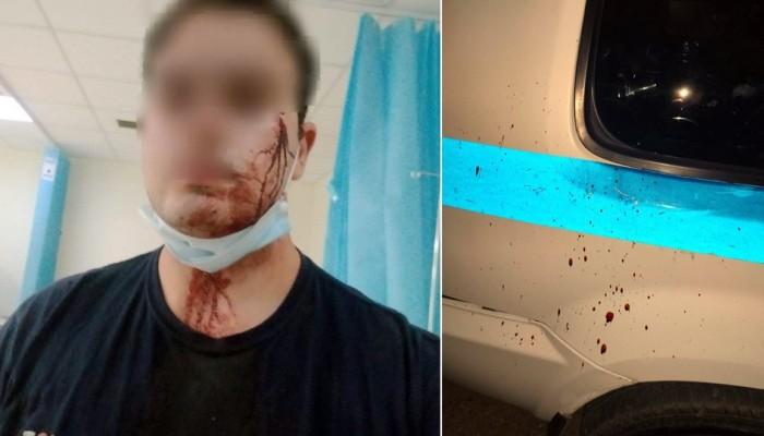 Αστυνομικοί δέχθηκαν επίθεση από Ρομά όταν τους έλεγξαν για συνωστισμό