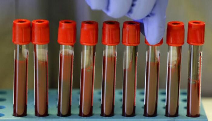 Εξέταση αίματος που μπορεί να εντοπίσει 50 τύπους καρκίνου ξεκινά να δοκιμάζει η Βρετανία