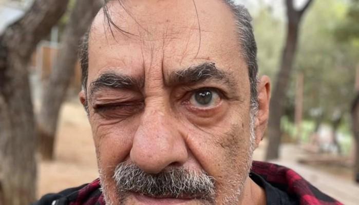 Αντώνης Καφετζόπουλος: Λυπάμαι πολύ, ως ανθρωπότητα «τα σκατώσαμε»